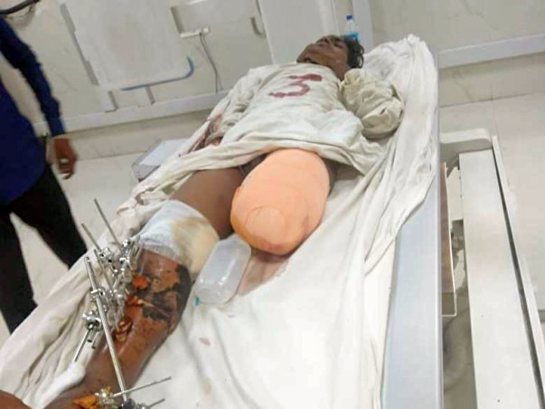 Help Sachin Who Met With A Severe Road Accident.
