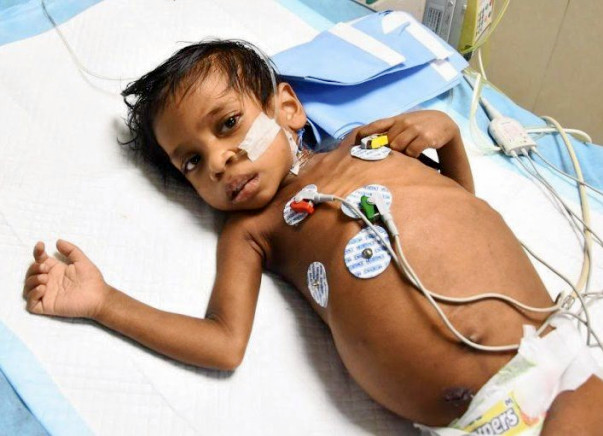 Parents Are Struggling To Save Their Third Child From The Same Disease