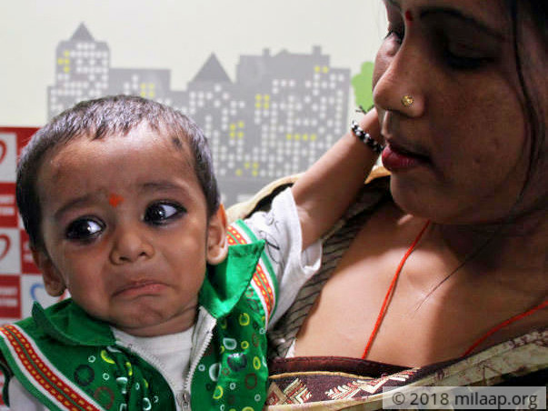 This Baby Gasps For Breath Every Single Day Due To Large Hole In Heart