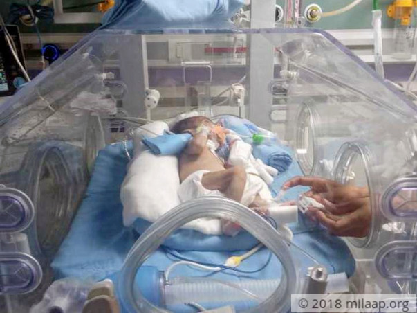 Help Baby Of Nazmeen Khan Who Is Under ICU