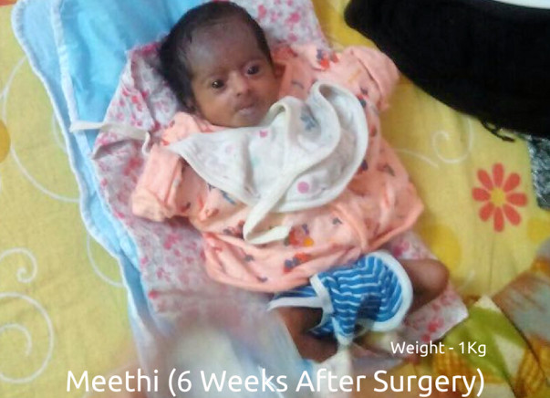 Help 2-Months Old Meethi Fight Intestinal Malrotation