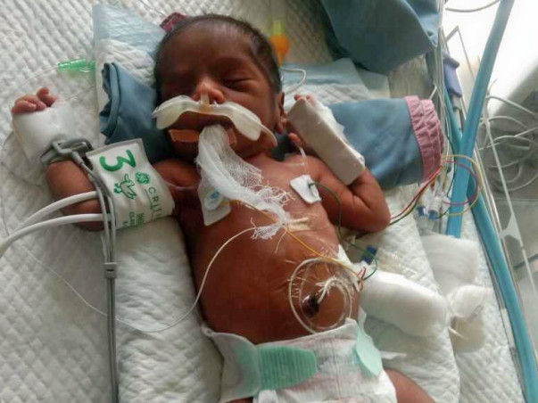 3 Days Old Baby Of Nandini  Needs Your Help Fight Valvular Stenosis