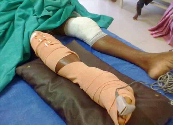 Help for Mariyappann, a victim of road accident