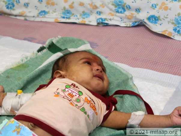 Every Passing Minute Is Crucial To 1-Month-Old Baby Without Treatment