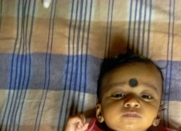 6-month-old Baby Nainitha Needs To Undergo Liver Transplant