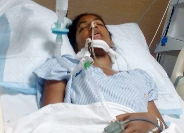 Help Jincy Come Out Of Ventilator Support