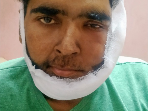 Help Satinder Heal From Mouth Cancer need surgery
