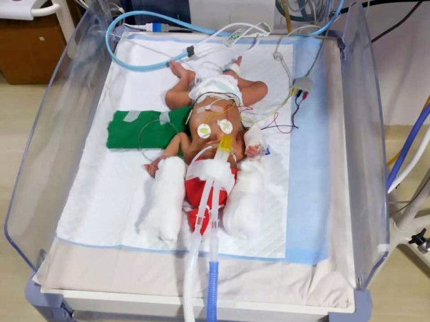 *Support My Preterm Born Twin Babies For Their NICU Treatment*