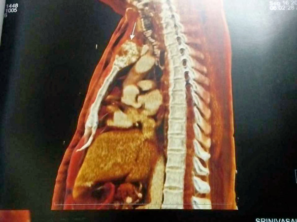 Help My Father Recover From Bone tumor