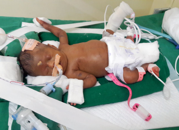 Baby is very critical condition help Save My 33-Days-Old female baby