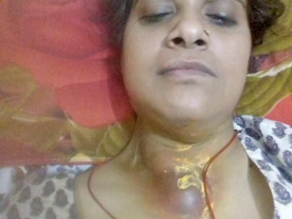 Help Geeta Fight Throat Cancer