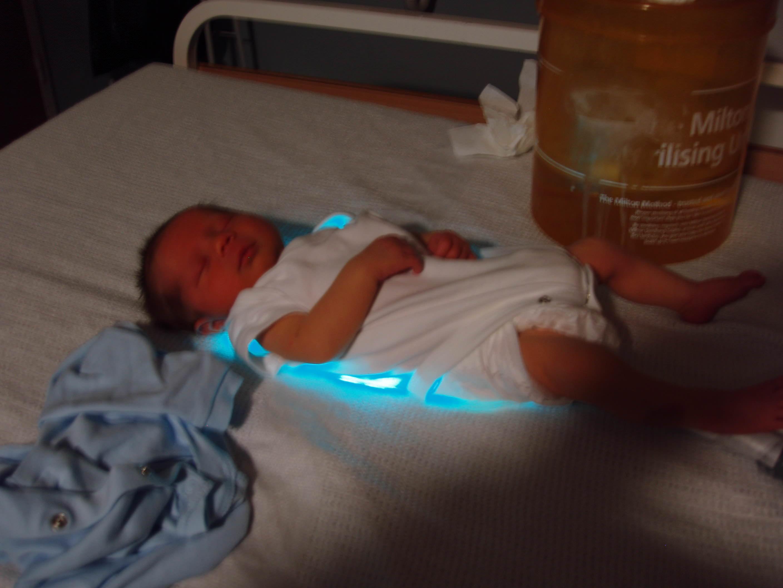 help india fight jaundice in newborn milaap